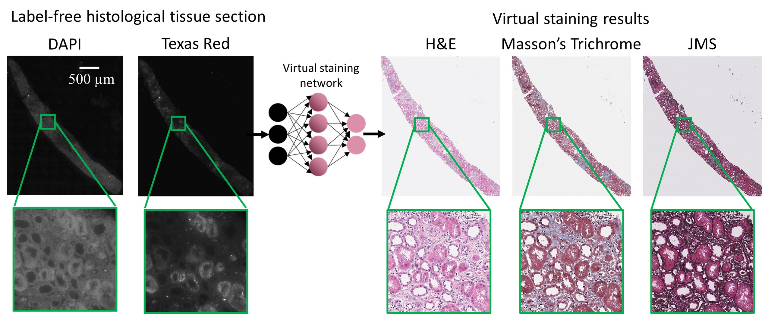 Deep learning-based virtual staining of unlabeled tissue samples.