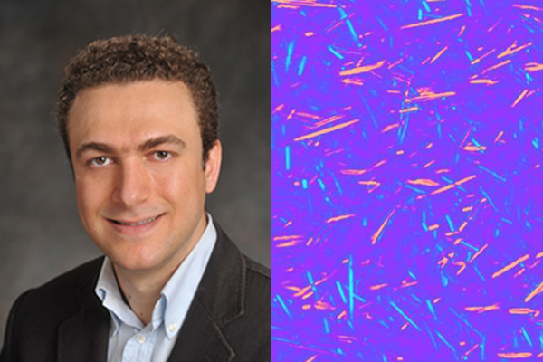 UCLA uses Computational Microscopy to Analyze Uric Acid Crystals