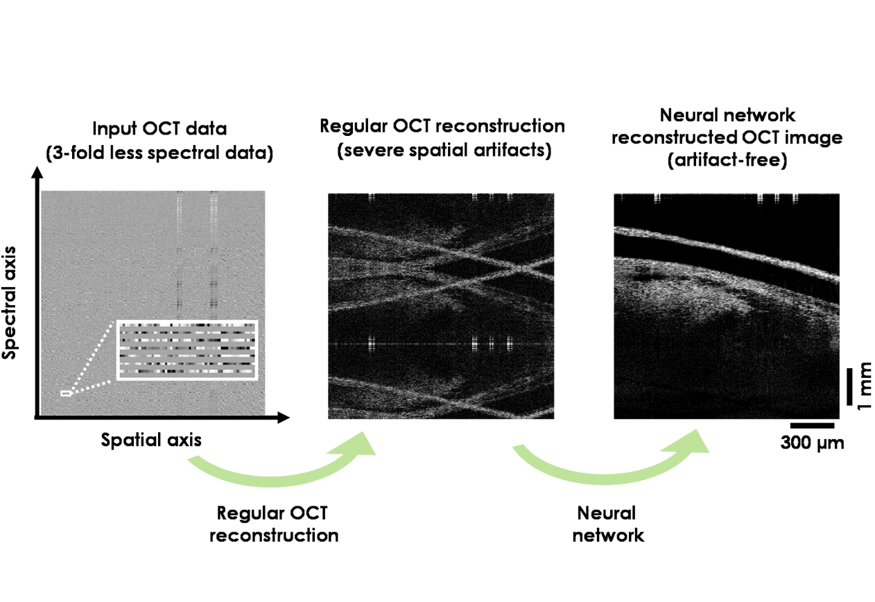 Deep learning improves image reconstruction in optical coherence tomography using less data