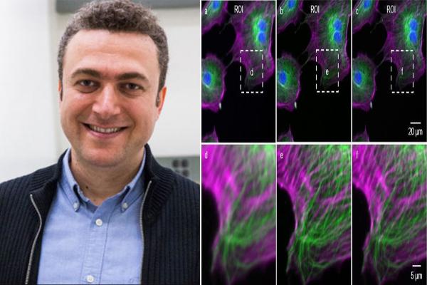Prof.  Ozcan's team takes fluorescence microscopy into super resolution